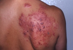 Genital Herpes Infection.jpg